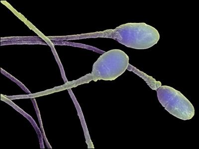 Сперматозоиды двигаются