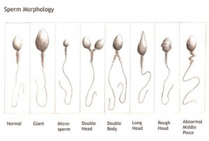 Патология сперматозоидов снизить